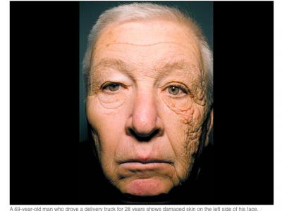 Лицо водителя грузовика после 28 лет работы – с левой стороны кожа стала тонкой и морщинистой